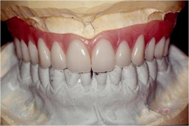 Planning for Aesthetics of the Maxillary Bridge