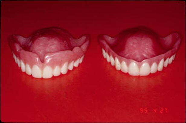 reatment Denture and Surgical Template for Implant Guide