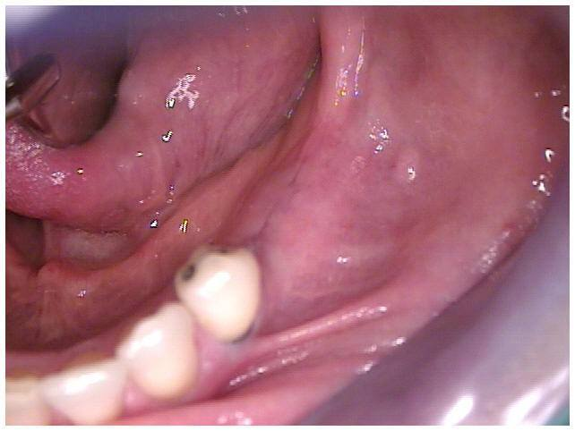 Primary Closure of Tissue Over Implants