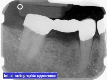 TOOTH BUILDUP (1)