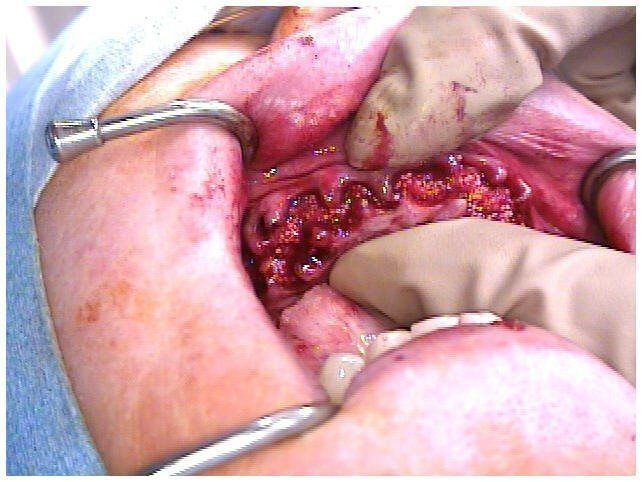 Alveoloplasty Compaction and HTR Grafting(2)