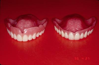 Treatment Denture & Surgical