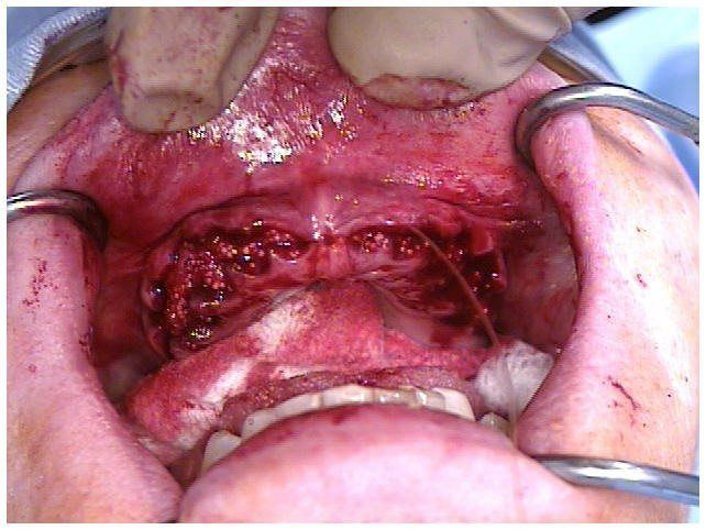 Alveoloplasty Compaction and HTR Grafting(1)