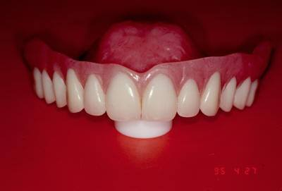 Treatment Denture