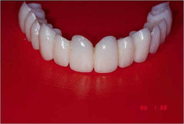 Provisionals Used During Initial Implant Loading