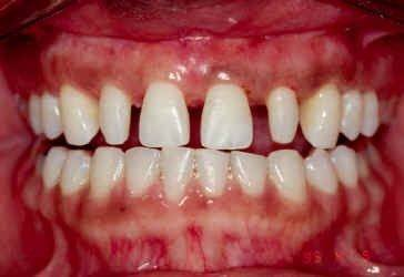 Post Orthodontic of Crown