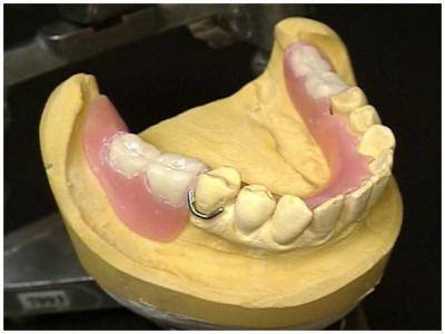 RAMUS GRAFT TO MANDIBLE