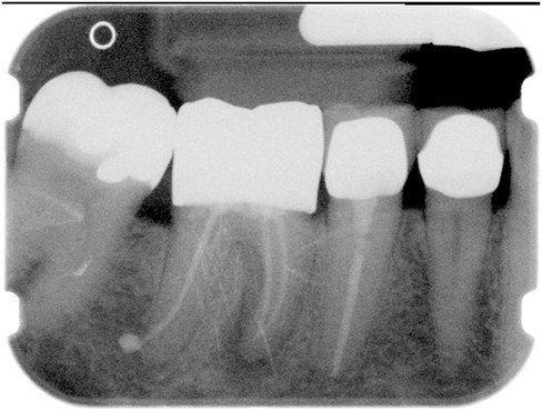 HTR Grafting | Dentist in Overland Park, KS