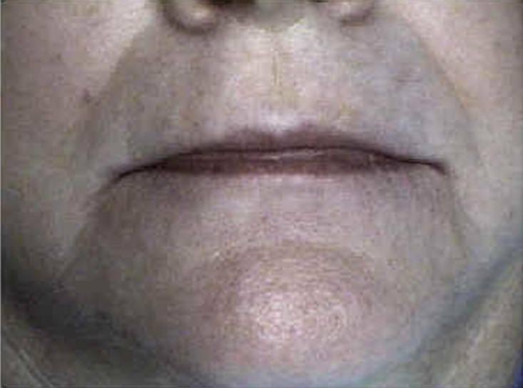 Cosmetic Dentures | Dentist in Overland Park, KS