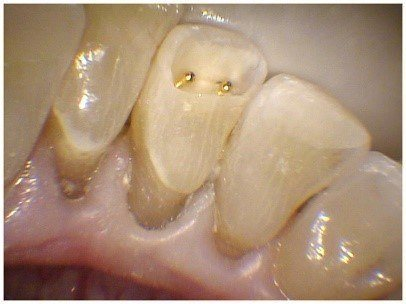 Pin Bonded Restorations(3)