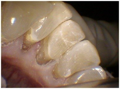 Pin Bonded Restorations(4)
