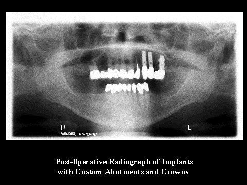 Post-Operative Radiograph (implants)