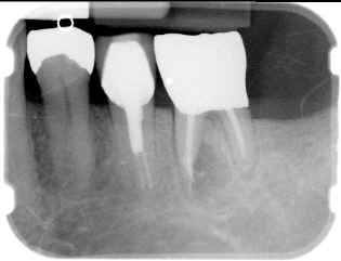 RADIOGRAPHS OF CLINICAL CASE(1)