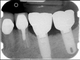 RADIOGRAPHS OF COMPLETED CLINICAL(2)