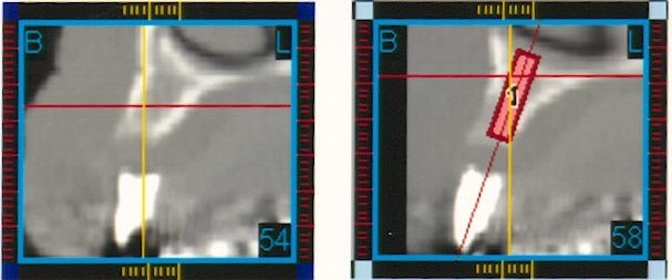 (CT Scan)6